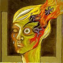migraines botox