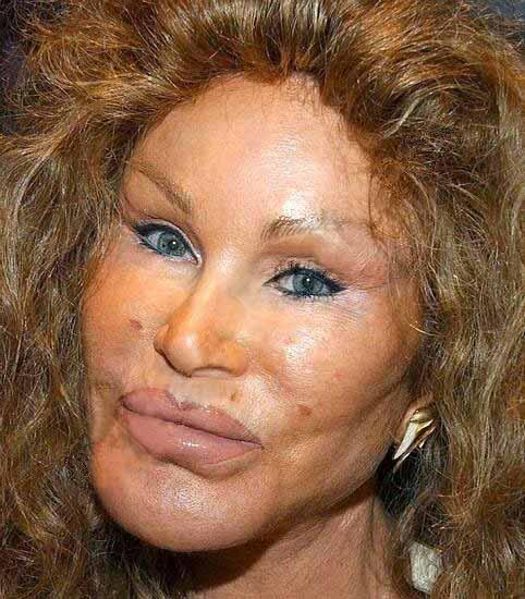 bad botox 2