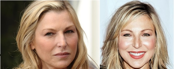 Tatum O'Neal 2012 (left) 2013 after Botox (right)
