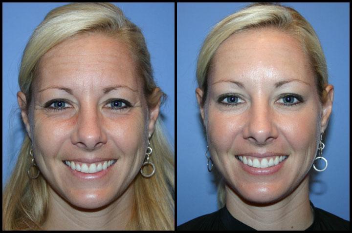 Botox Trials
