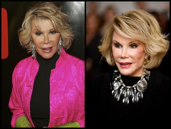 Celebrity Botox