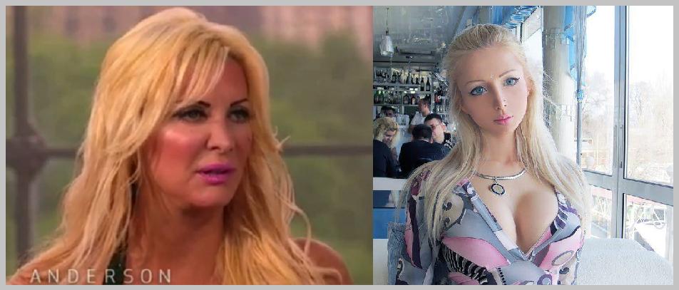human barbie botox