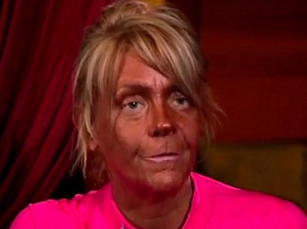 tan mom botox 1